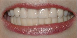 After Dentures Dr. John M Gowey Pleasanton CA
