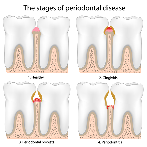 Dr. John M Gowey, DDS Pleasanton CA Periodontal Disease